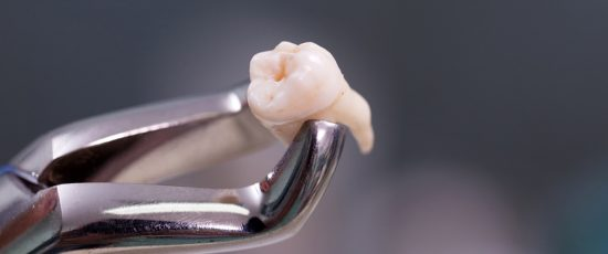 Bien se préparer à une intervention d'extraction de dents de sagesse…